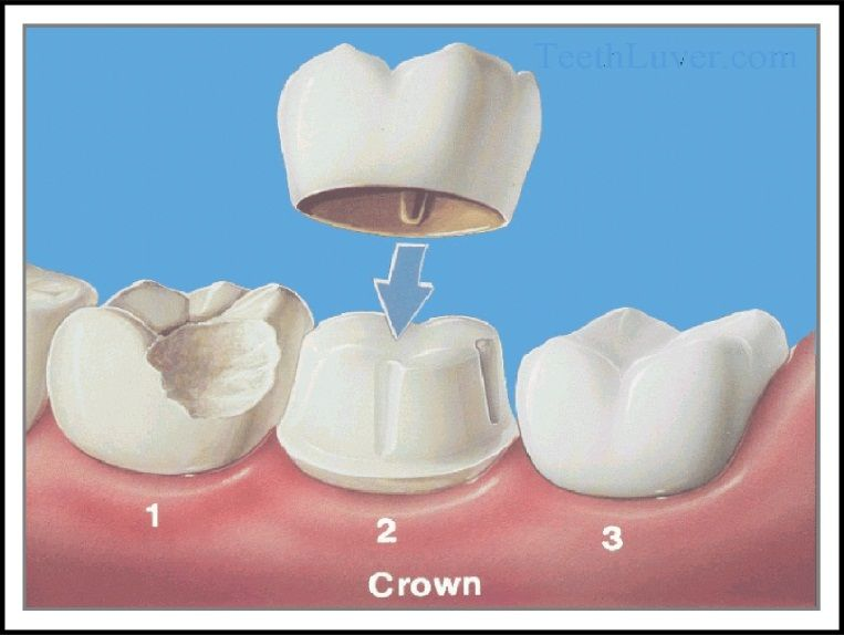 Cosmetic Dentist in Santa Rosa, CA - Sean Wilson, DDS